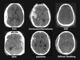 brain scans of tbi patients